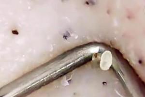 藏在毛孔里的螨虫是皮肤噩梦这4个现象暗示螨虫在侵吞你的脸